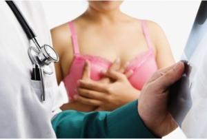 Ar trebui sa fac mastectomie profilactica?