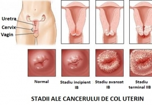 simptome cancer col)