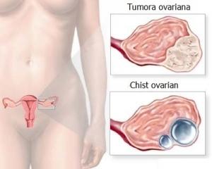 cancerul la ovare simptome