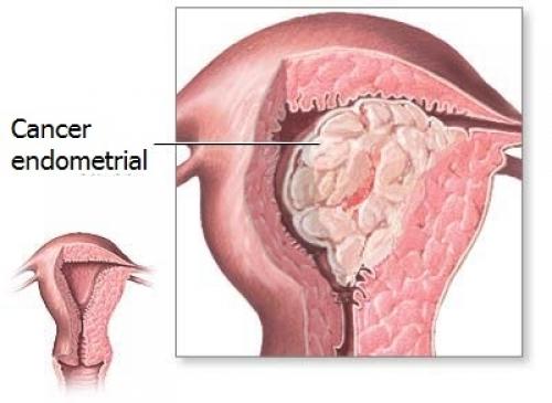 Factori de risc pentru cancerul de endometru