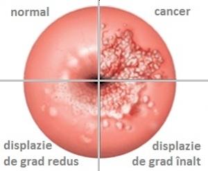 cum se manifesta cancerul de