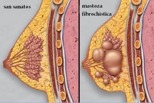 Mastoza Fibrochistică și Chisturile Mamare