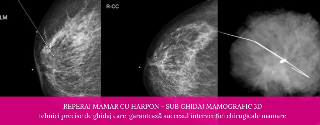 Reperaj mamar cu harpon - sub ghidaj mamografic 3D